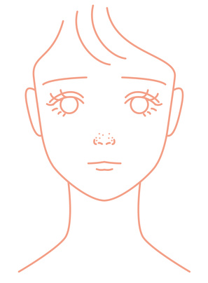 鼻の黒いぽつぽつに悩やむ女の子