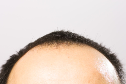 getting bald