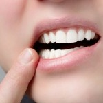 口角炎の原因と効果的な治療法【胃の不調も関係?】