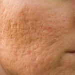 クレーター肌の原因と改善させる方法【簡単に治るのか?】