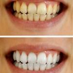 歯が黄ばむ原因はコーヒーやタバコ?【食べ物にも注意】