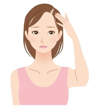 分け目が薄くなっている女性のイラスト