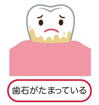 歯垢がたまっている