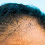 薄毛の原因は男性ホルモン?【DHT対策で毛母細胞を活発に!】